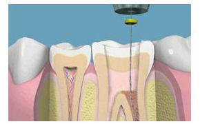 Endodoncia: Especialidades de Clínica Dental Dr. Juan Luis Sánchez