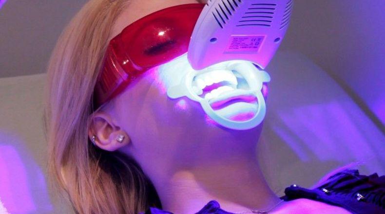Blanqueamiento dental Jerez