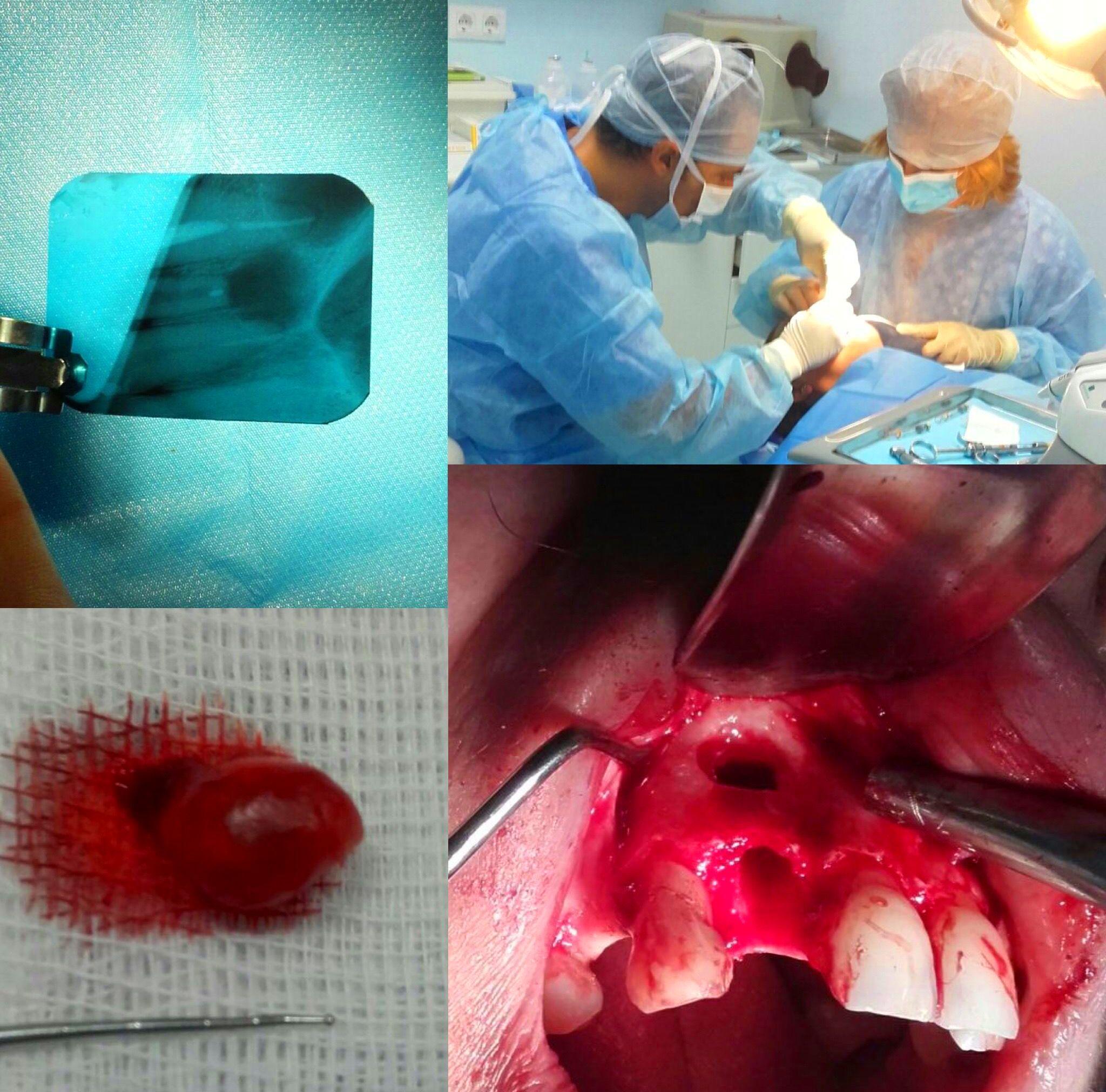 Cirugía dental: Especialidades de Clínica Dental Dr. Juan Luis Sánchez