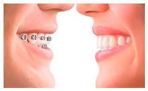 Ortodoncia: Especialidades de Clínica Dental Dr. Juan Luis Sánchez