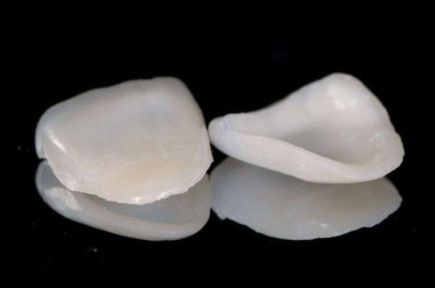 Carillas dentales en Jerez