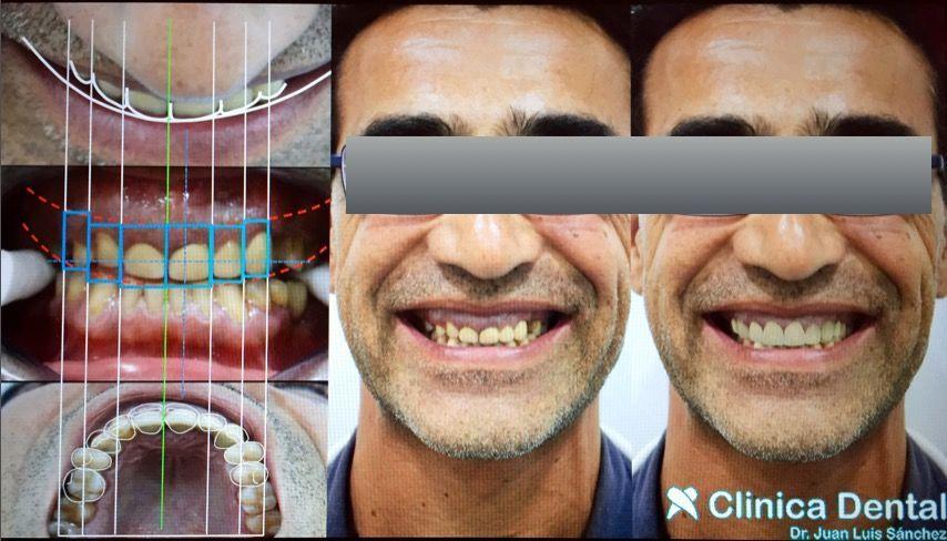 Diseño digital de la sonrisa(Digital Smile Design) en Jerez