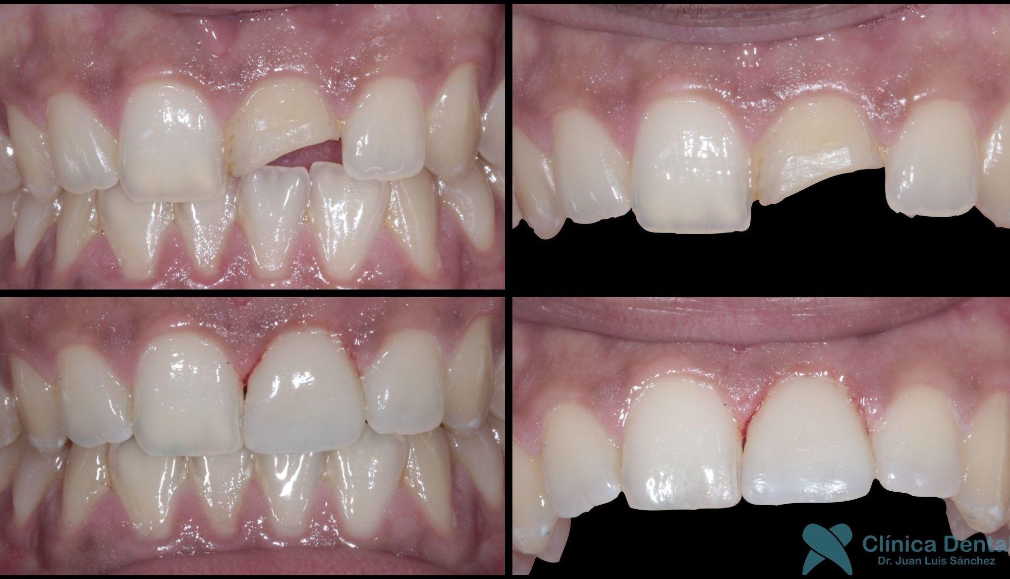 Restauración de composite en Clase IV