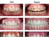 Ortodoncia: Especialidades  de Centro Dental Unamuno