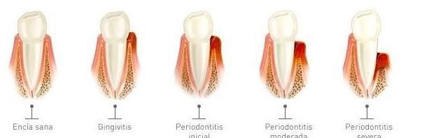Periodoncia: Especialidades  de Centro Dental Unamuno