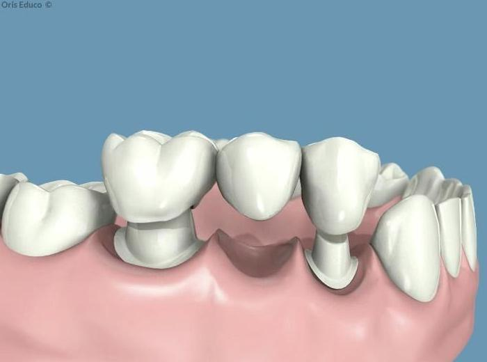 Prótesis dentales fijas o removibles: Especialidades  de Centro Dental Unamuno