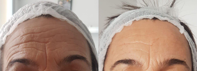 Lifting facial sin cirugía Valencia