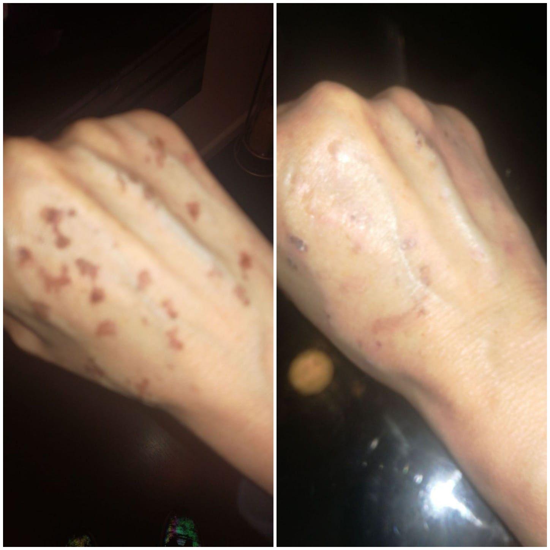 Eliminar manchas y cicatrices Valencia