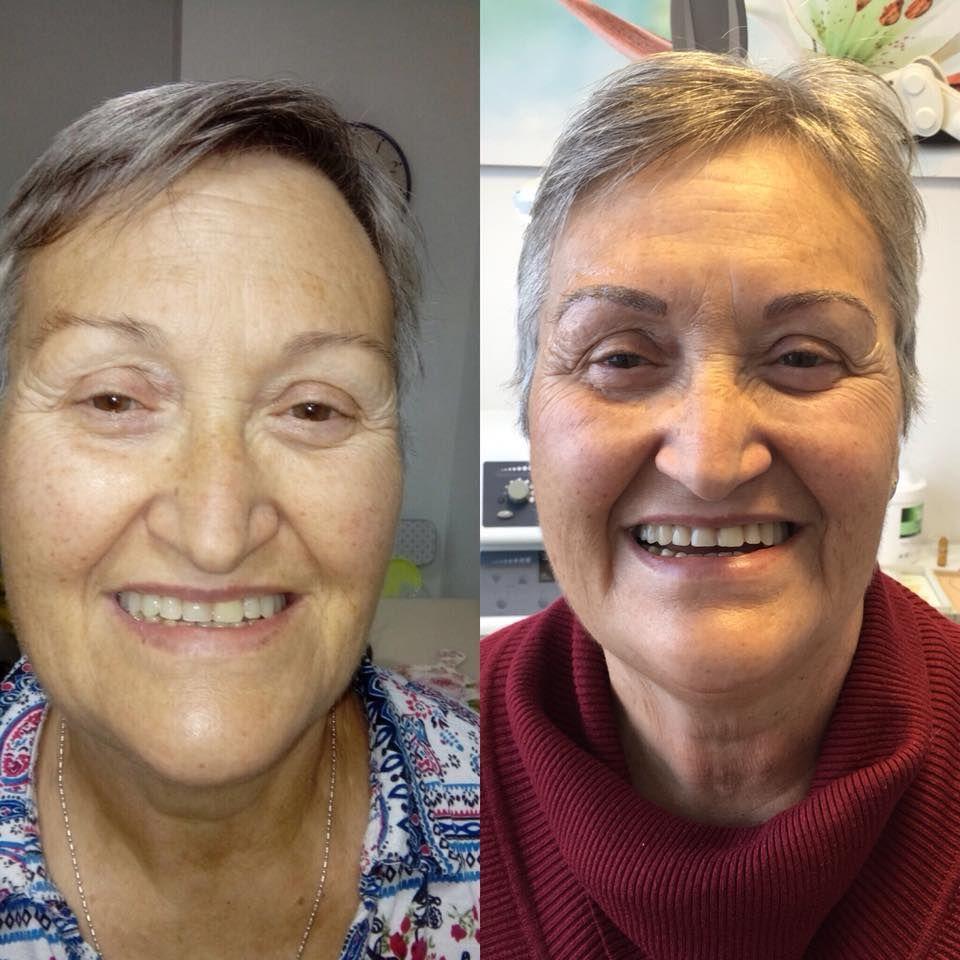 Antes y después del microblading