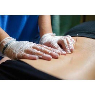 Punción seca: Tratamientos de Fisioterapia Paradise Center
