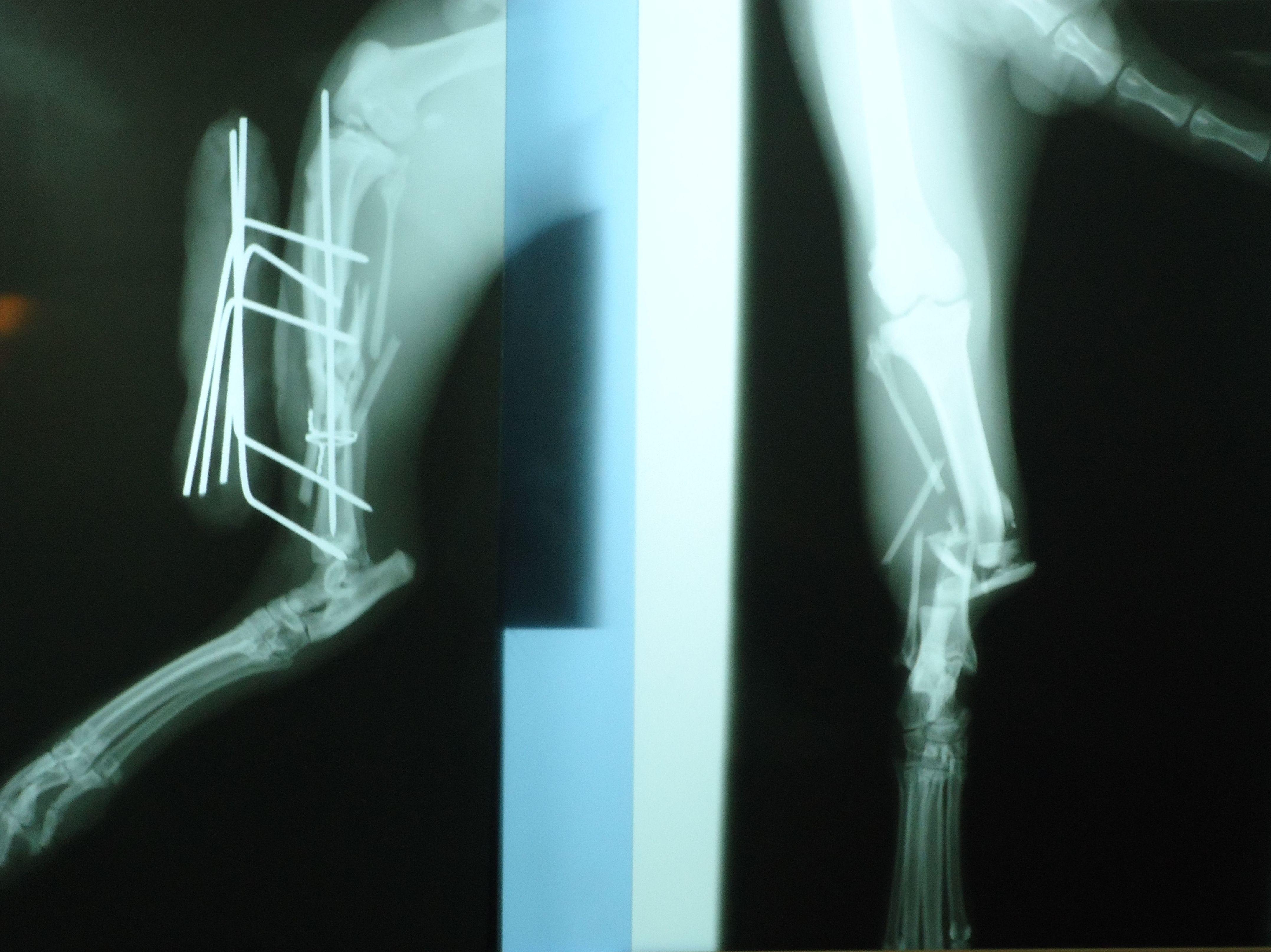 Radiología en roturas