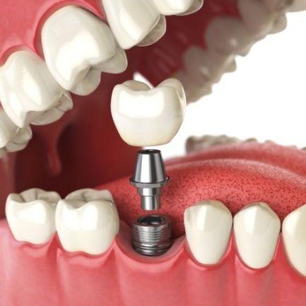 Implantología avanzada: Tratamientos de Clínica Dental Ruiz Jalón