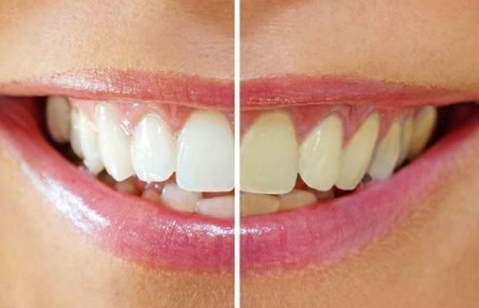 Estética dental: Tratamientos de Clínica Dental Ruiz Jalón
