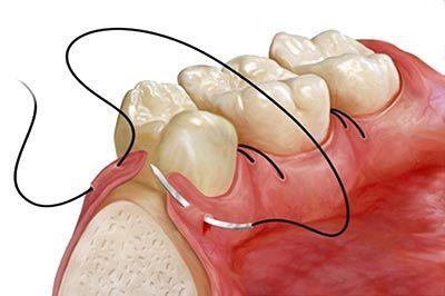 Cirugía: Tratamientos de Clínica Dental Ruiz Jalón