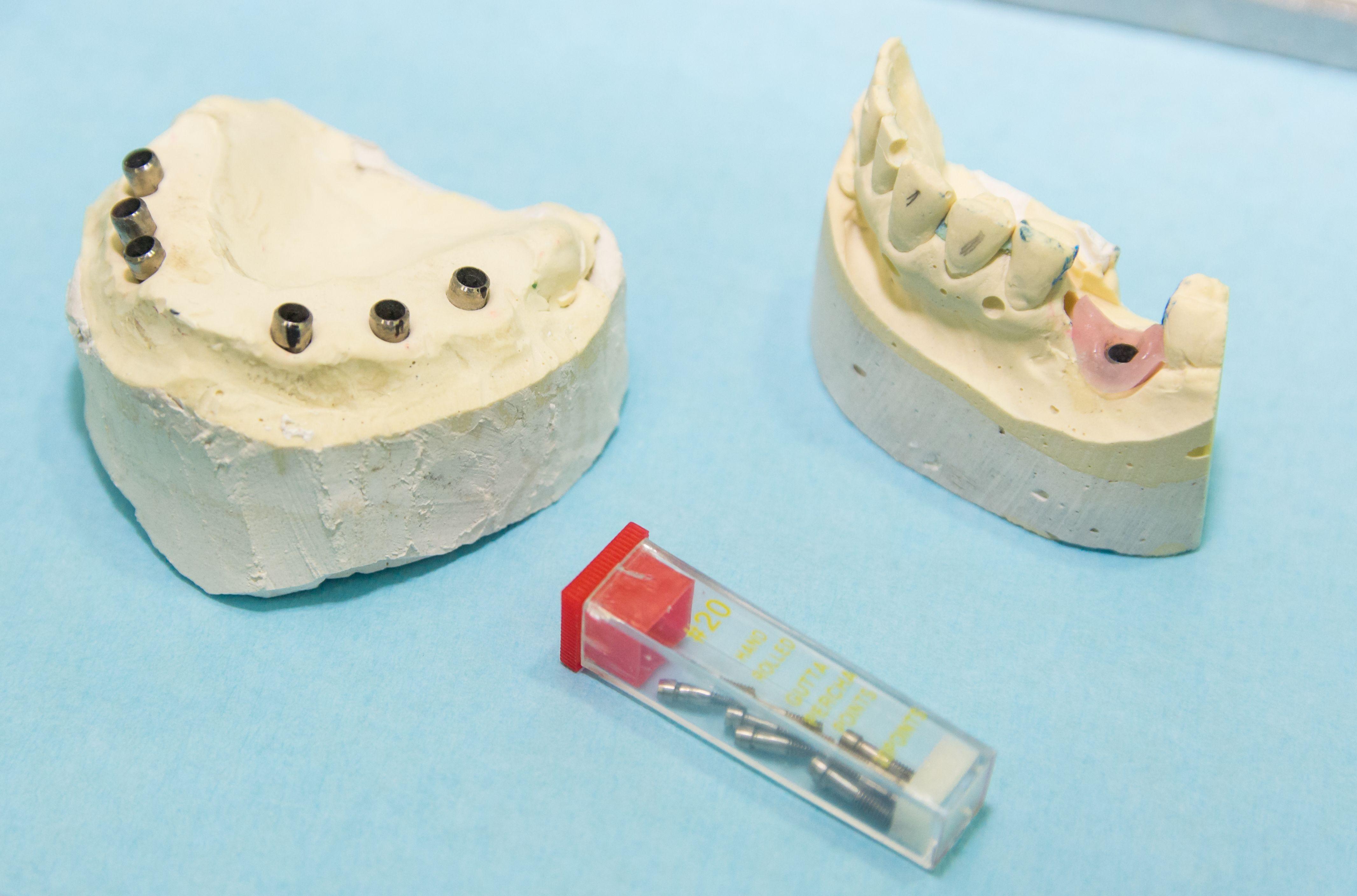 Implantes dentales en Numancia de la Sagra