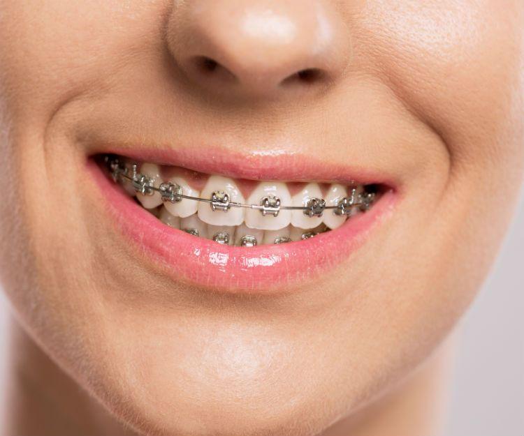 Tratamientos de ortodoncia en Parla