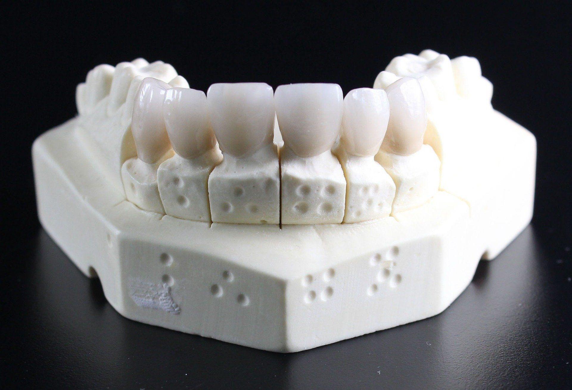 Implantes dentales en Sagadent Milenium