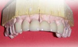 Laboratorios dentales. Protésicos dentales, implantes dentales, estética dental...
