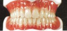 Sagadent Milenium, circonio dental