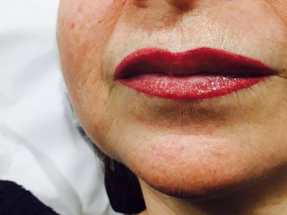 Después de una micropigmentación de labios