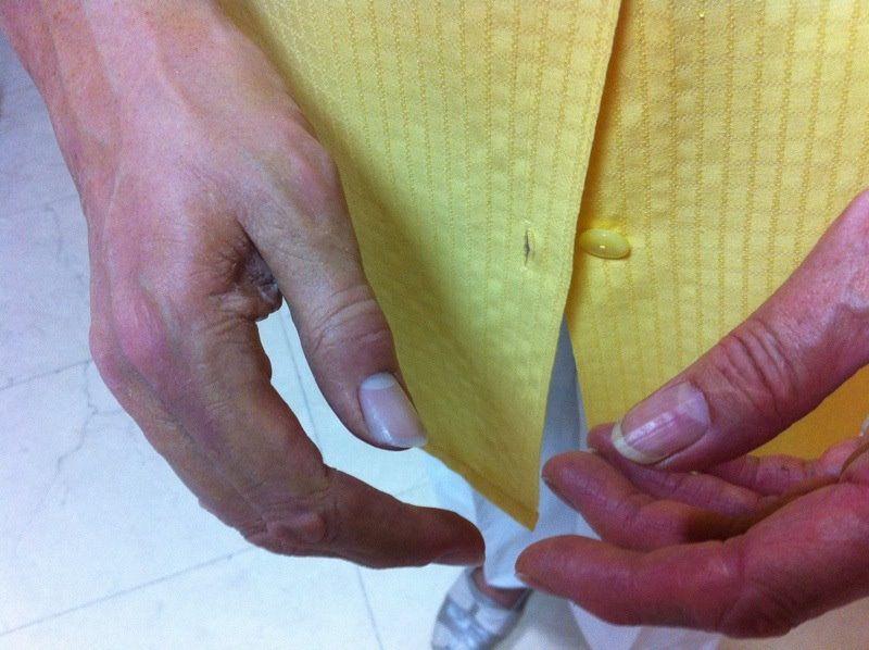 Protesis estetética