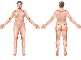 La fisioterapia ayuda a los pacientes con fibromialgia. Via: salud.ideal.es