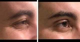 Medicina estética facial en Vigo