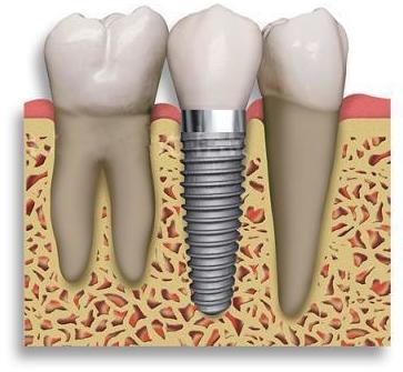 Implantes: Servicios de Clínica Dental El Carmen