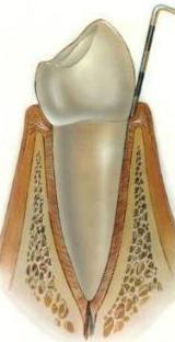 Periodoncia: Servicios de Clínica Dental El Carmen