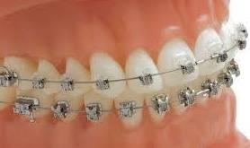 Los brackets Damon en ortodoncia fija con fuerzas ligeras