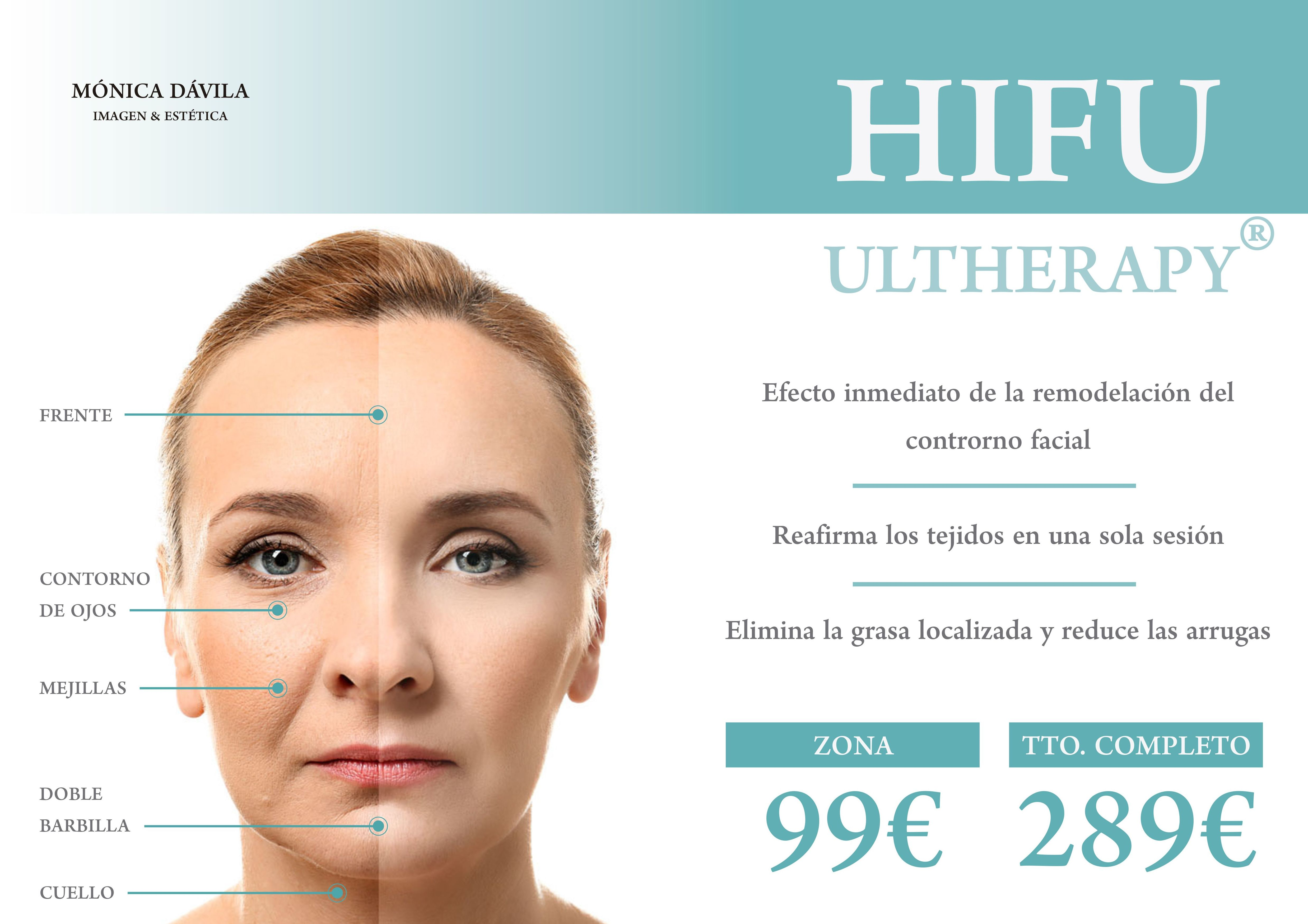 Hifu Ultherapy
