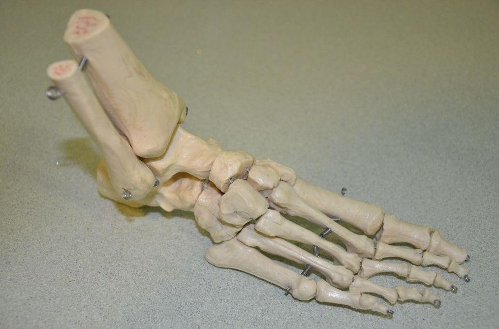 Cirugía del pie en Castellón
