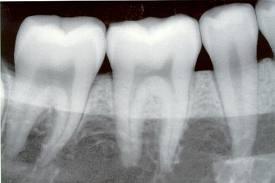 Radiografías: Servicios  de Centro Dental Bizkai-Dent