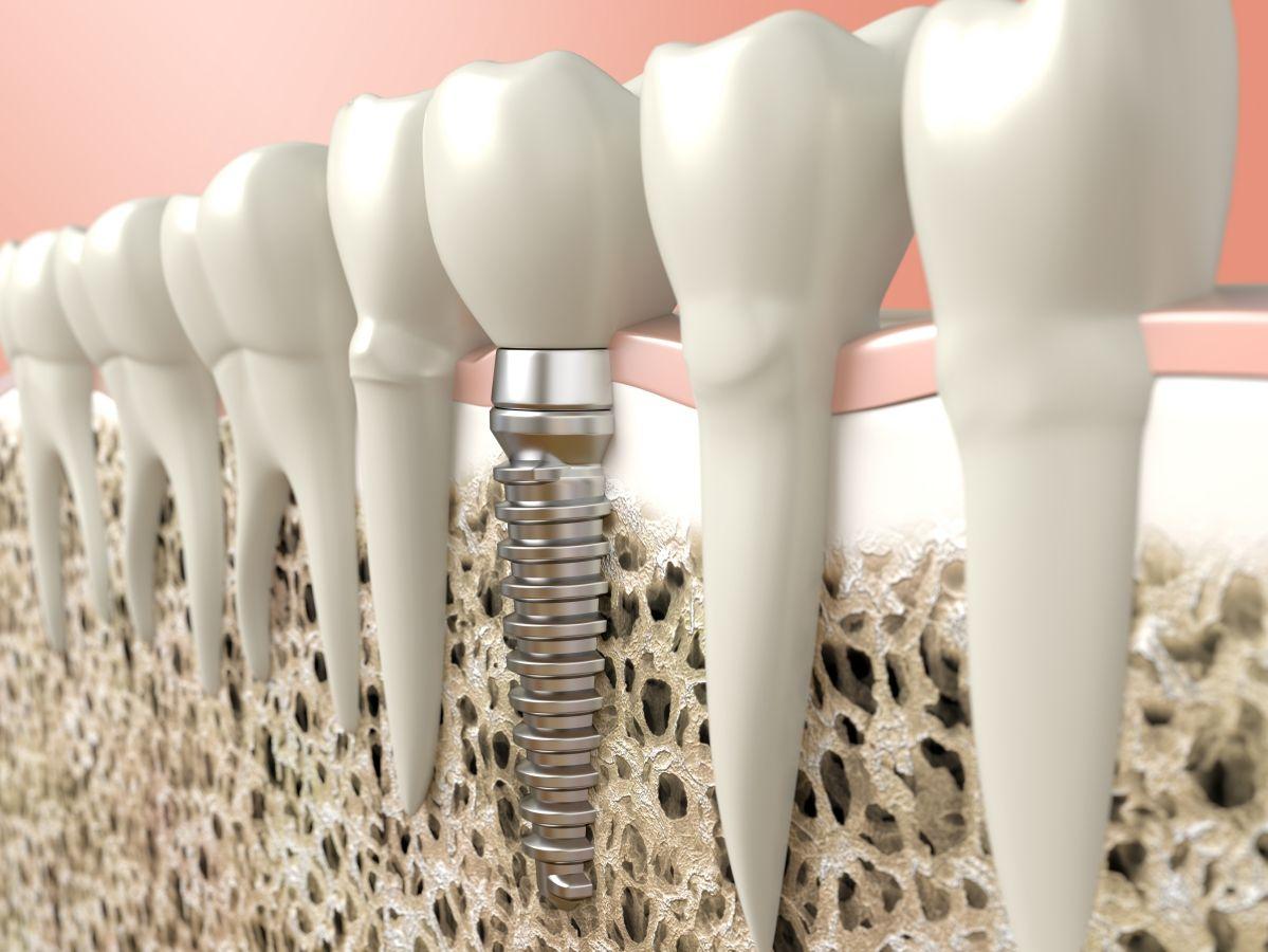 Impantología dental: Tratamientos dentales de Clínica Dental Atocha