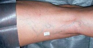Escleroterapia en Leioa