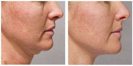 Tratamientos faciales en Leioa
