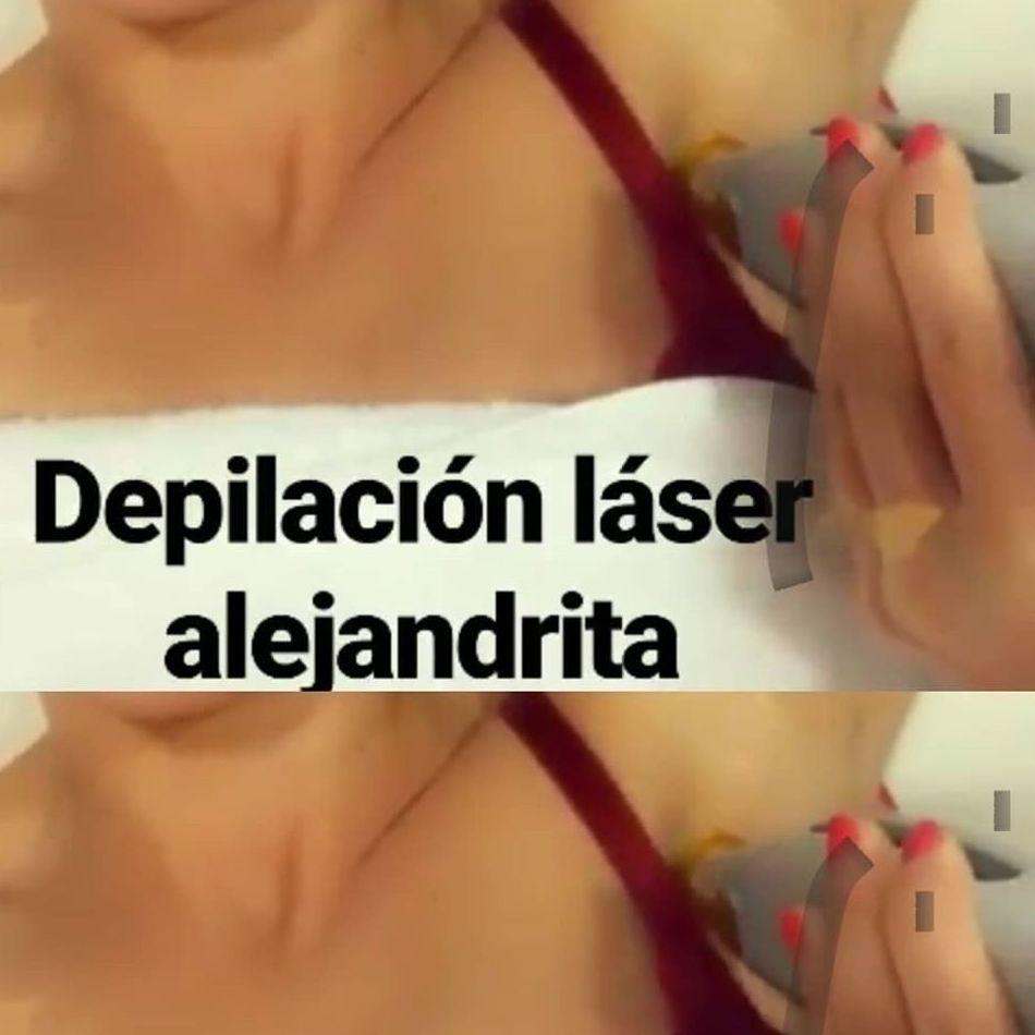 Profesionales de la depilación láser Alejandrita