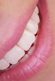 BLANQUEAMIENTO DENTAL: SERVICIOS de Clínica Dental Basauri