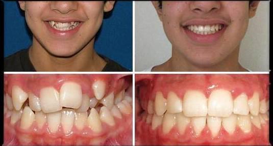 Resultados ortodoncia Damon Basauri