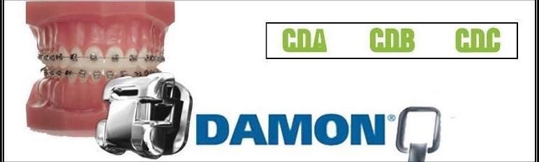 Ortodoncia Damon en exclusiva