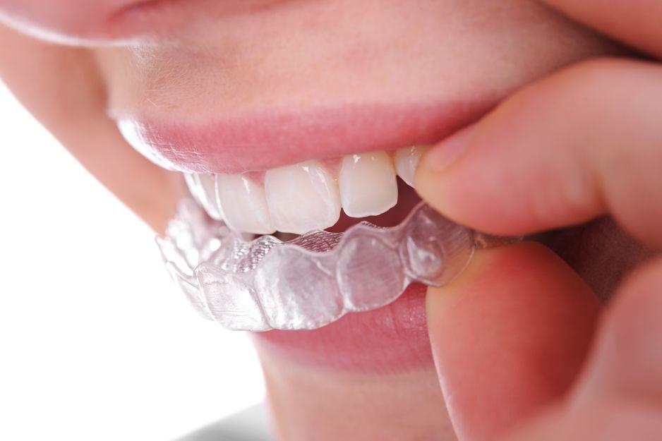 Ortodoncia invisible en Vic