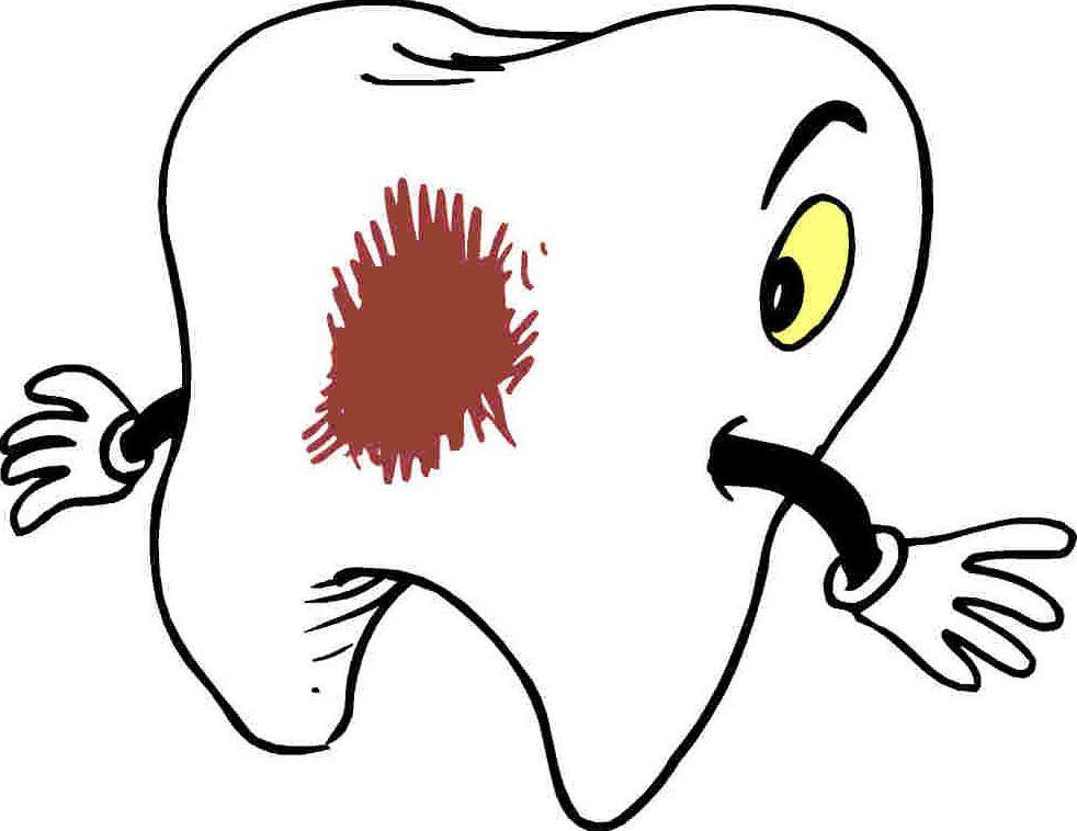 Caries: Servicios de Clínica Dental San Pedro