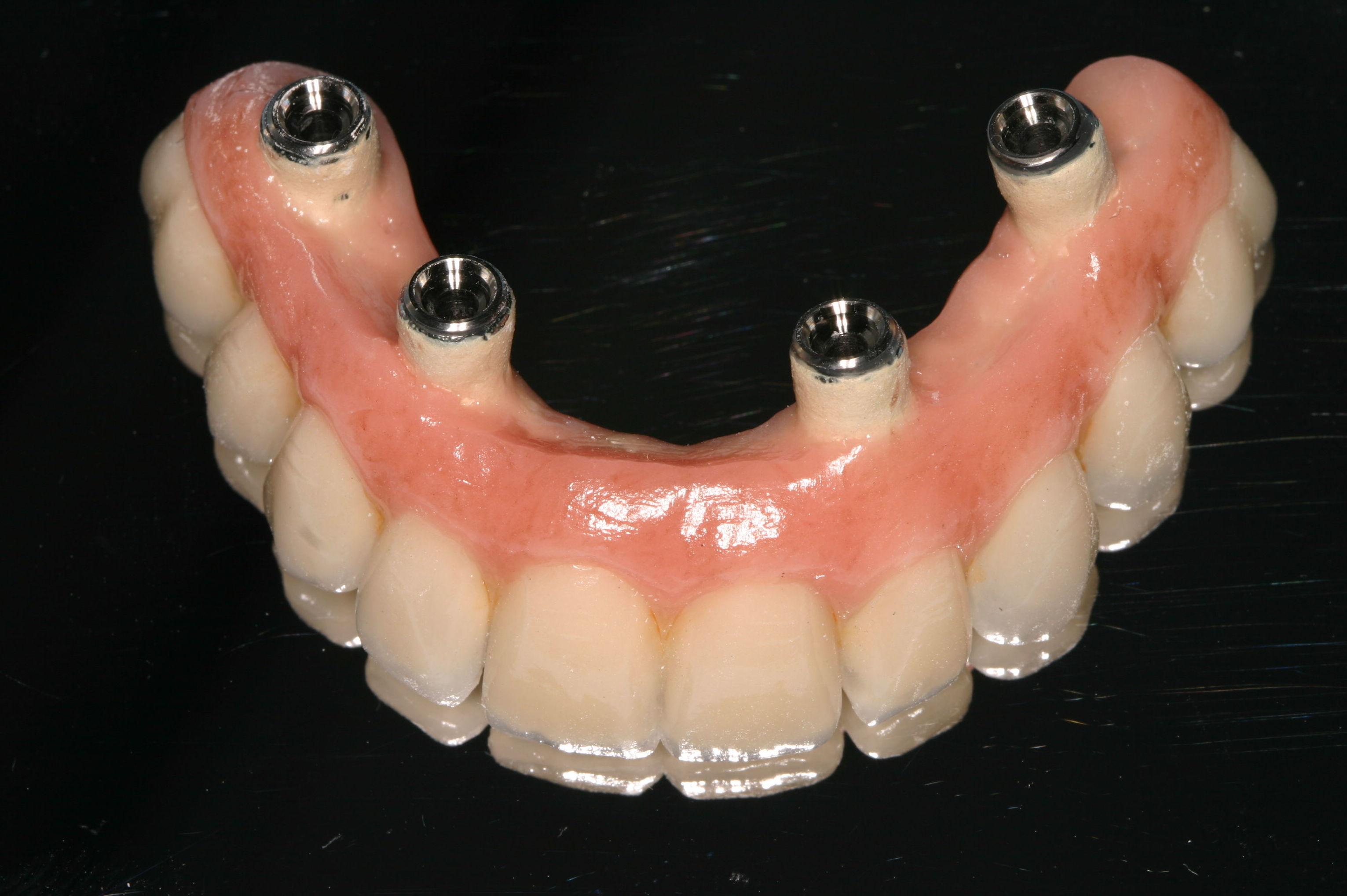 Laboratorio dental con más de 25 años de experiencia en Las Palmas