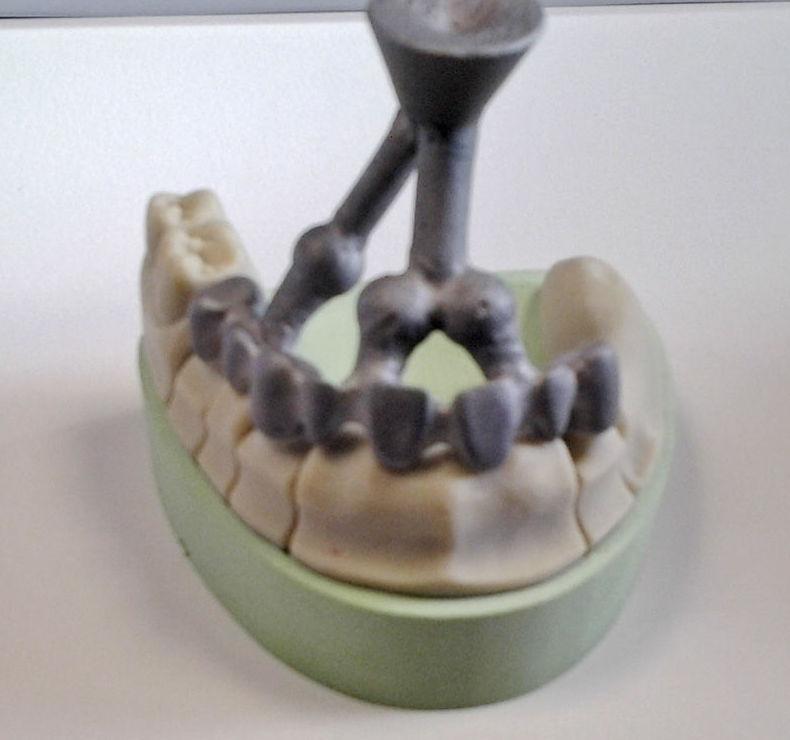 Prótesis dental fia