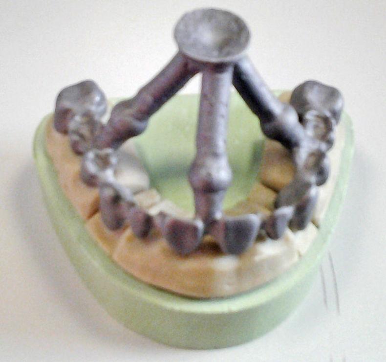 Elaboración de prótesis dentales