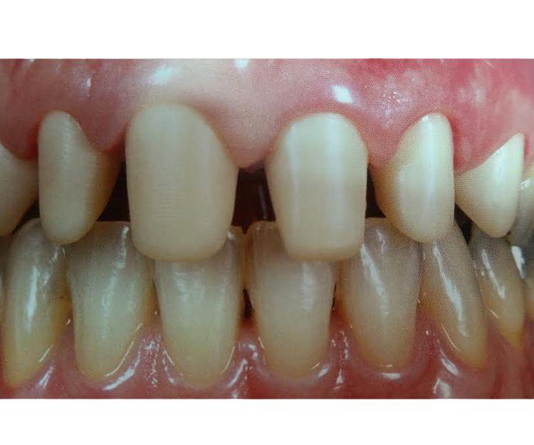 Prótesis dentales tanto fijas como removibles
