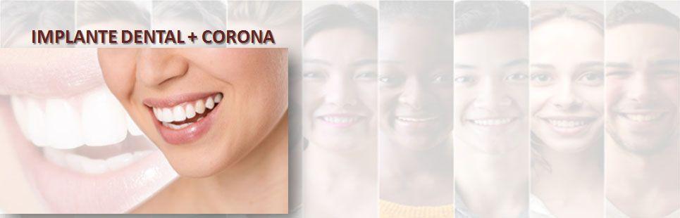 Foto 60 de Clínicas dentales en  | Clínica Dental Reina Victoria 23