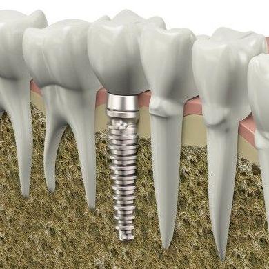 Implantes dentales : Servicios de Clínica Dental Reina Victoria 23