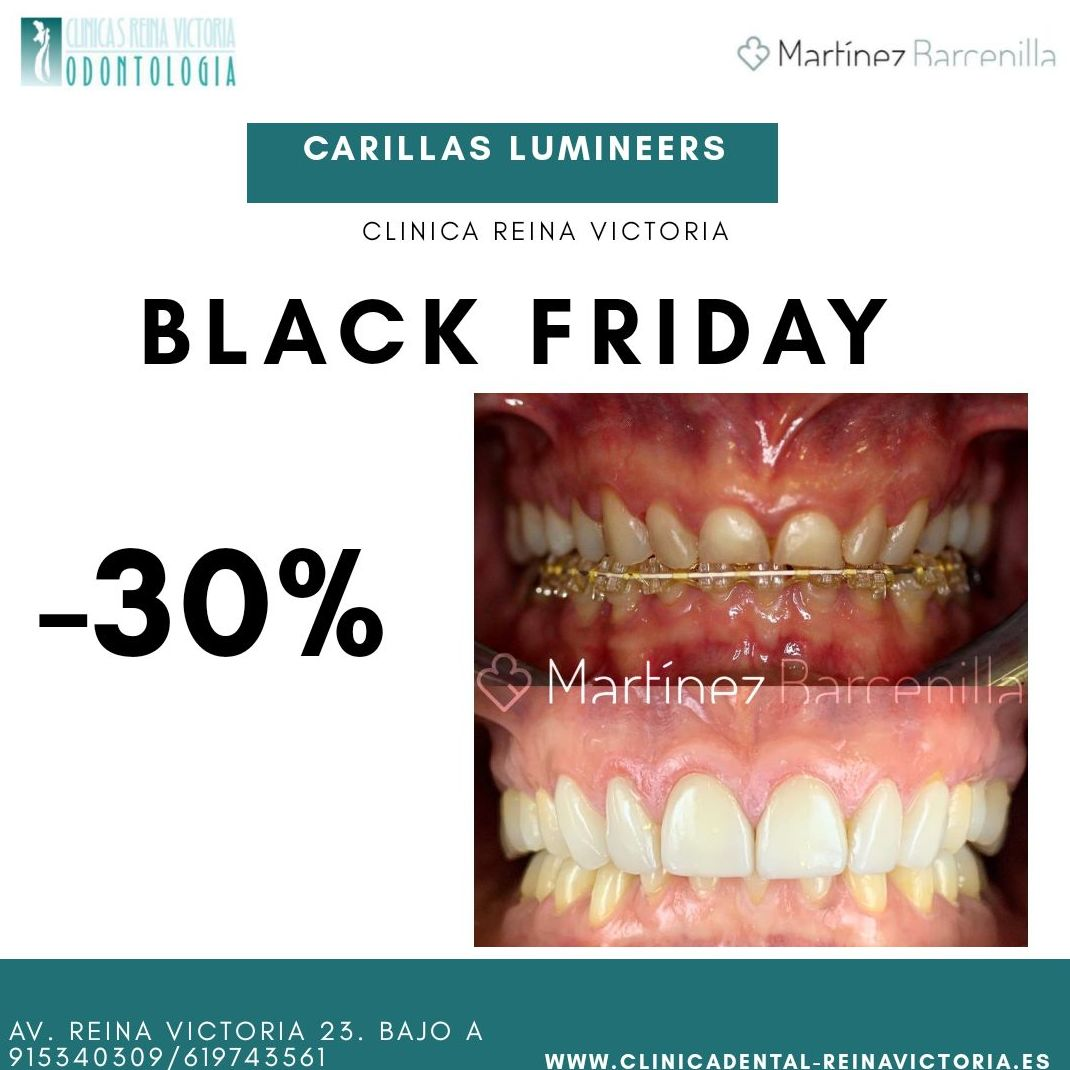 BLACK FRIDAY | CARILLAS LUMINEERS