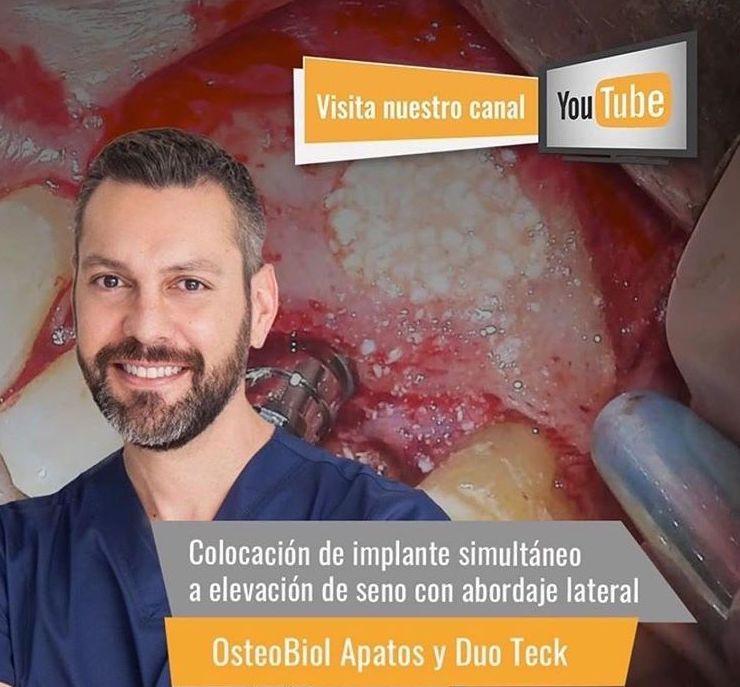 DR. CARLOS MARTÍNEZ -CANAL YOUTUBE, OSTEBIOL, ELEVACIÓN DE SENO II